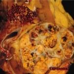 blastedpancreas